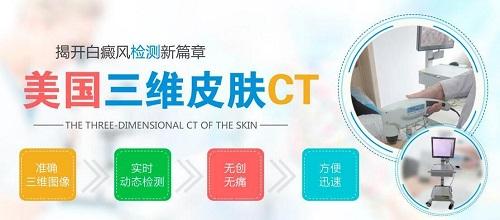 皮肤CT检测白斑