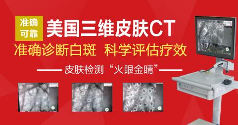 皮肤ct检查白癜风有副作用吗