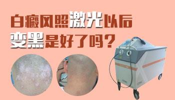 白癜风照308后变黑的皮肤能恢复正常吗