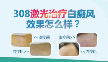 12岁小孩脸上有白斑用激光治疗好吗