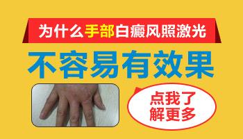 308激光治手部和脸部白斑恢复进度不一样的原因