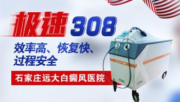 308准分子激光可以照头面部白癜风吗