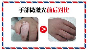 女性手部白癜风治疗前后的对比图