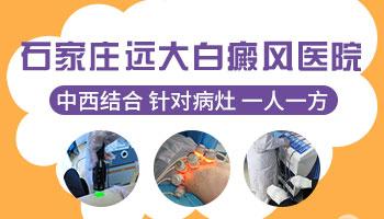 衡水治疗白癜风专科医院