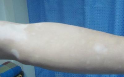 手臂肤色不均有白块是什么原因