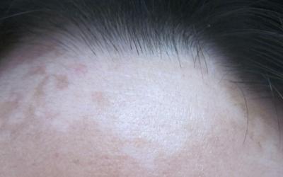 前额发际线出现一块白色的皮肤怎么回事