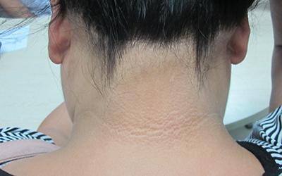 脖子后边白斑一个多月了什么情况