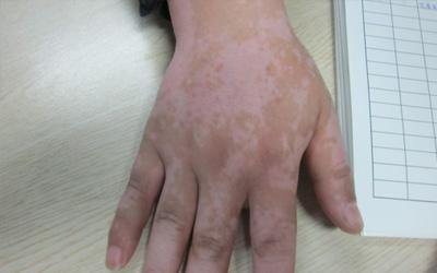 右手背有一块淡白色的皮肤是什么