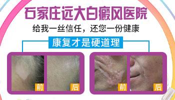 石家庄治疗白癜风皮肤病好的医院