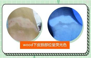 wood灯下的白癜风是什么颜色