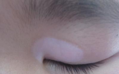 孩子眼角皮肤发白是怎么的