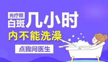 白癜风患者照308激光后多长时间能洗澡