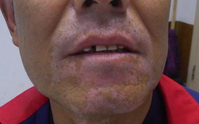 下巴的皮肤长好几块白怎么回事