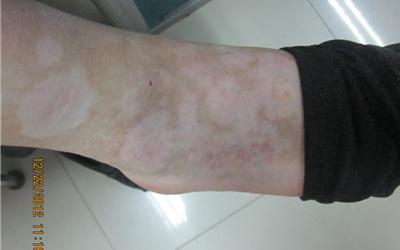 脚背刚发现光滑的白斑不痒是什么