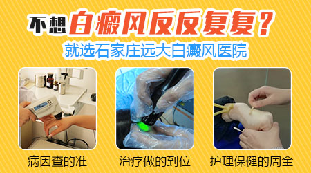 手指缝白癜风以前治疗过现在变严重了