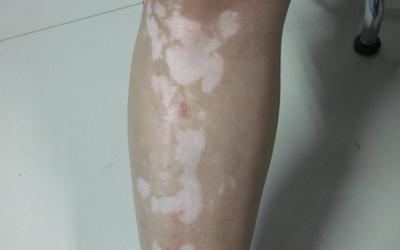 去年发现腿上好多小白点今年慢慢变多了