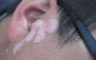 耳朵前面有白斑是不是白癜风