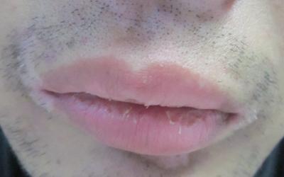 嘴唇白癜风初期图片