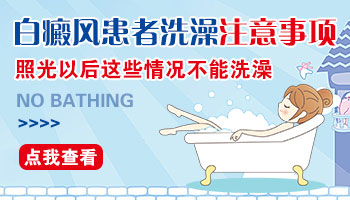 白癜风照过窄普uvb多久能洗澡