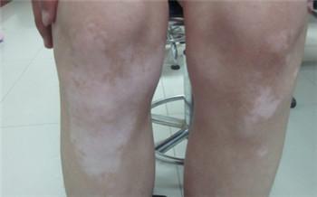 腿上有小白斑的图片 白斑能治好吗