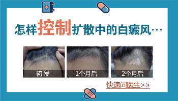 白癜风发展期治疗有用吗 白斑能治好吗