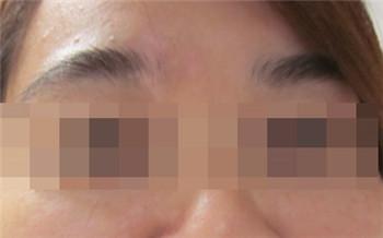 眉毛白癜风初期图片 白斑怎么治