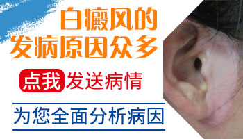 保定白斑发病的原因和治疗方法