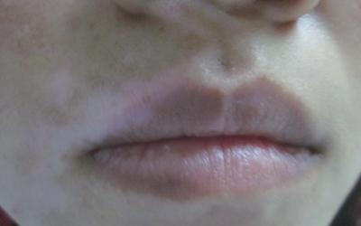 嘴唇外侧下面皮肤发白