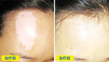 头部白癜风紫外线光疗仪