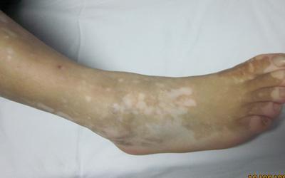 女性脚腕上白癜风怎么治疗好的快