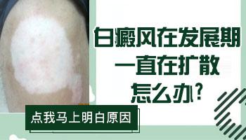 文章来源|白癜风信息科 审核医师|王树申