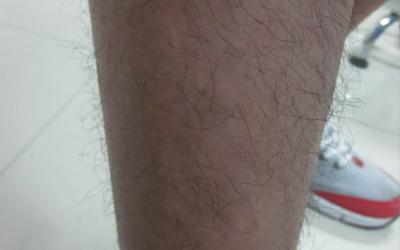 怎么判断腿部出现的白斑是不是白癜风