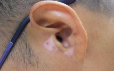 耳朵边上长了很多小白点