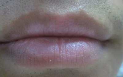 嘴唇上早期白癜风图片