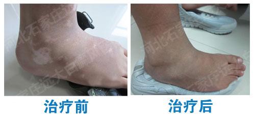 脚踝的地方皮肤出现白斑是不是白癜风