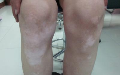 膝盖处出现一块白色斑点很光滑
