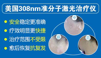 网上卖的治疗白癜风的308光疗仪靠谱吗