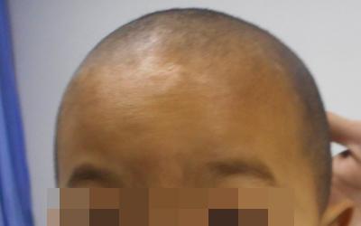 儿童额头长白斑边界不清晰是什么病