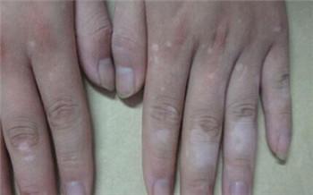 手指关节处现在变得比以前白