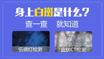 胸部白斑照片 如何分辨白斑是不是白癜风
