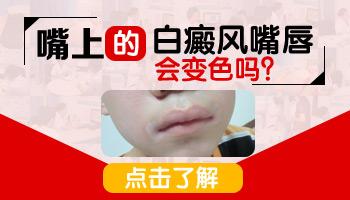 嘴唇白色斑块是什么