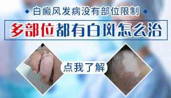 手指关节上和腿上有很明显的瓷白色白斑