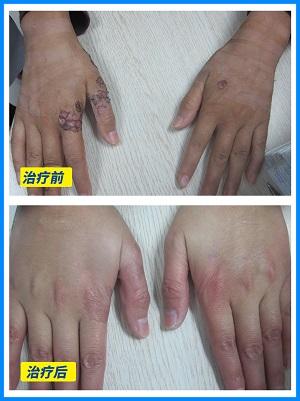 手背植皮一年后康复图