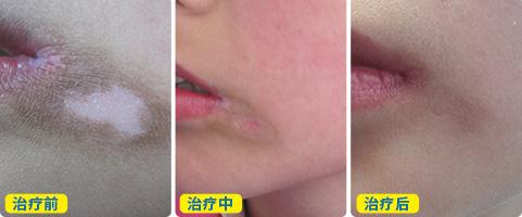 嘴角白斑有十年了有什么好的治疗方法
