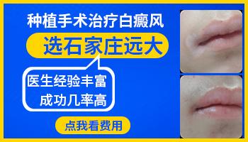 嘴唇黏膜上白癜风能做细胞培植吗