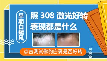 网上买的308激光治疗白癜风好用吗