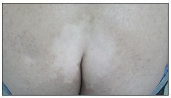 屁股上面长了白斑是什么原因