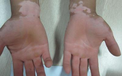 手掌皮肤内出现白点图片