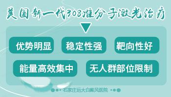 308准分子激光治疗白癜风原理
