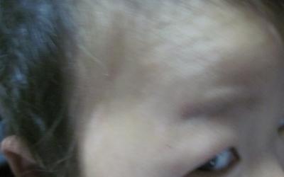 儿童白癜风早期表现 不同部位白癜风症状